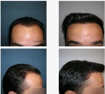 imagen de caso real microinjerto de pelo 2