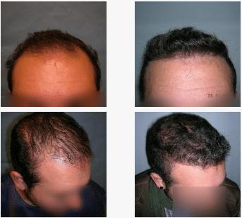 imagen de caso real microinjerto de pelo 8