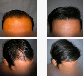 imagen de caso real microinjerto de pelo 5
