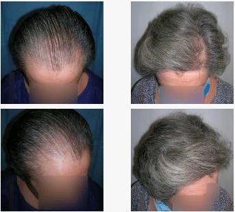 imagen de caso real microinjerto de pelo 3