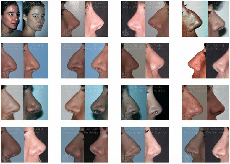 imagen de Casos reales antes y despues cirugia de nariz rinoplastia clinica Clínica Medivás madrid