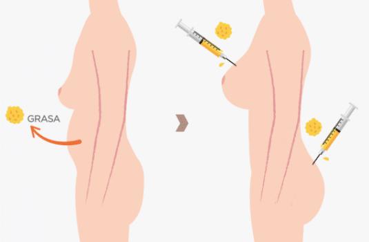 lipotransferencia y lipofilling madrid