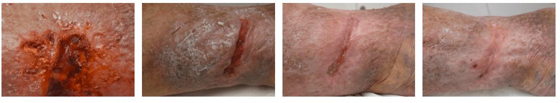 imagen de Aplicación de Ondas de Choque para la cura de úlceras