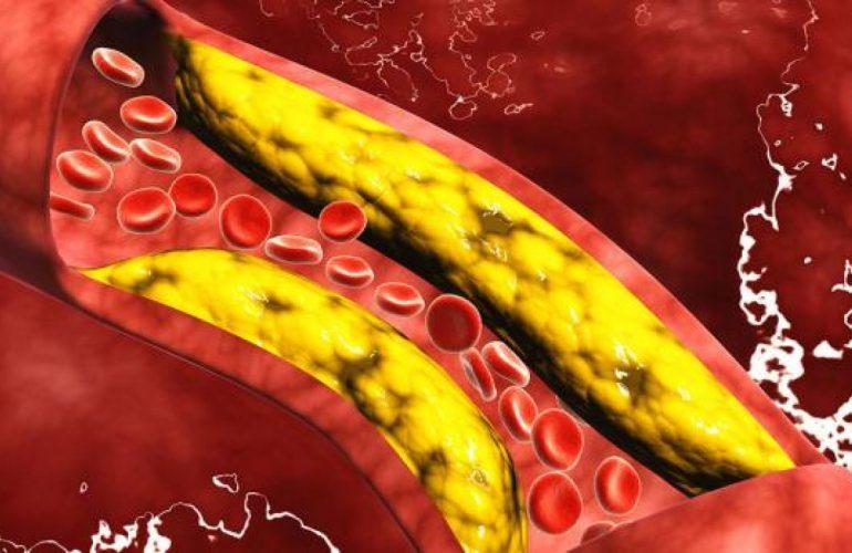 imagen de Enfermedad Cerebrovascular