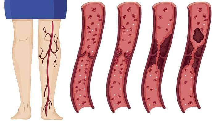 imagen de Enfermedad Tromboembólica