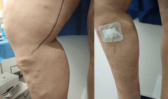 imagen de Tratamiento de varices con sellado cianocrilato
