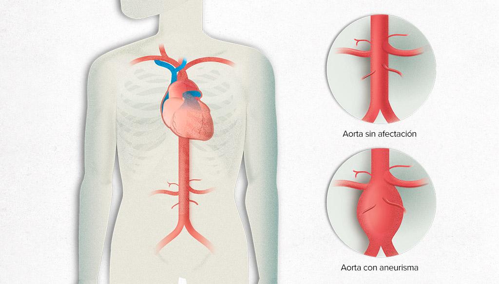 imagen de aneurisma de aorta clinica medivas