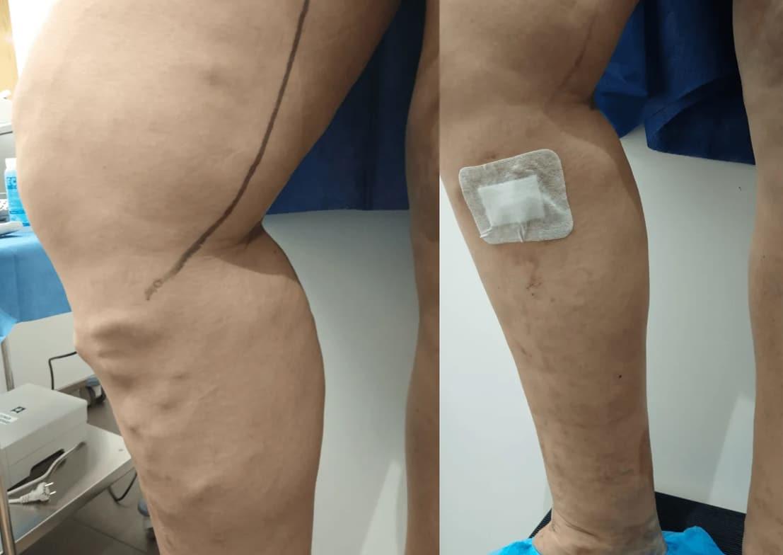 imagen de caso real de varices sin cirugia 1