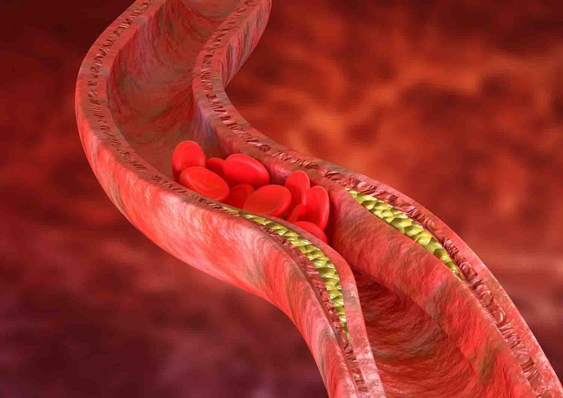 imagen de claudicación intermitente molestias pierna medivas