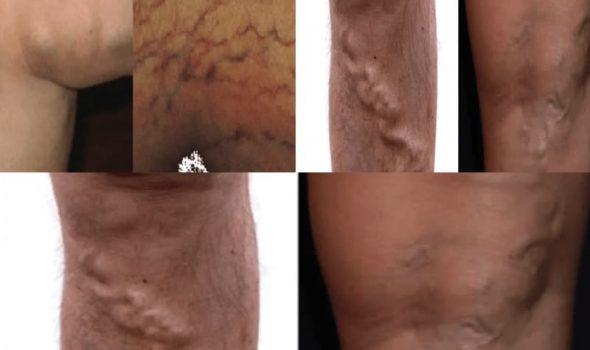 imagen de tratamos todo tipo de varices por un cirujano vascular