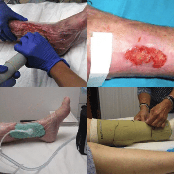imagen de varices sin cirugia dr agustin arroyo