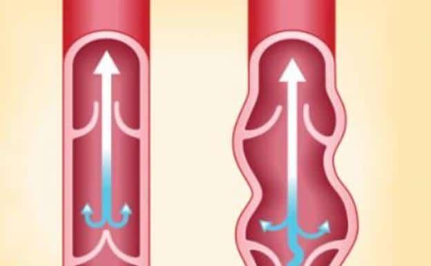 imagen de varices tratamiento y diagnostico medivas
